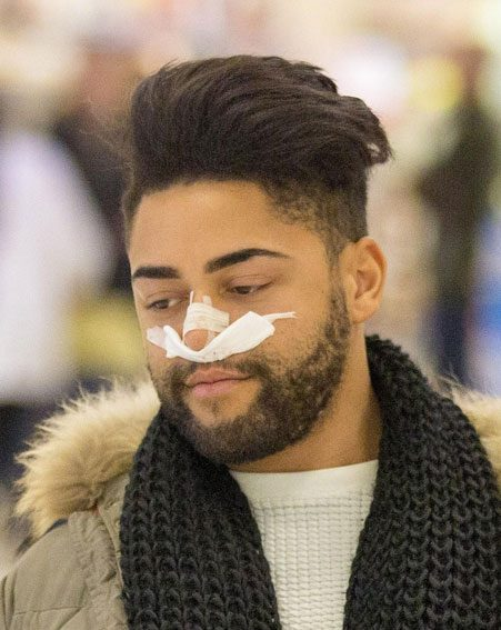 Mark Byron's nose was seen bandaged up