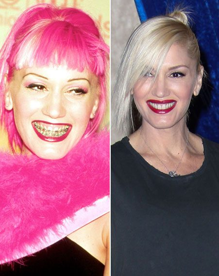 Gwen Stefani's braces made the whole world off difference