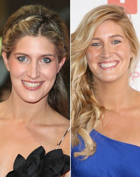 Made In Chelsea star Cheska Hull has admitted to having her teeth whitened