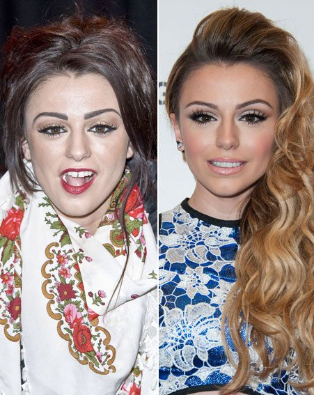 Cher Lloyd looks totally different from her X Factor days