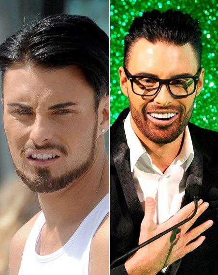 Rylan Clark's teeth job received a lot of backlash