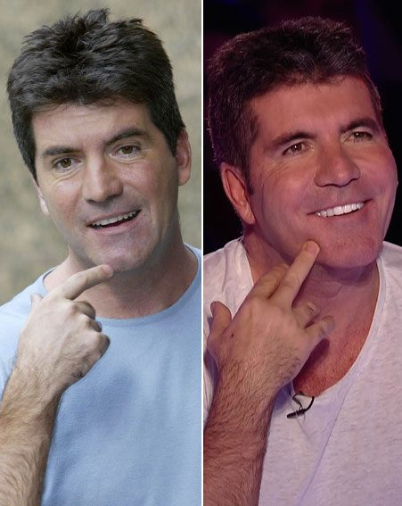 Simon Cowell's dental work isn't exactly subtle