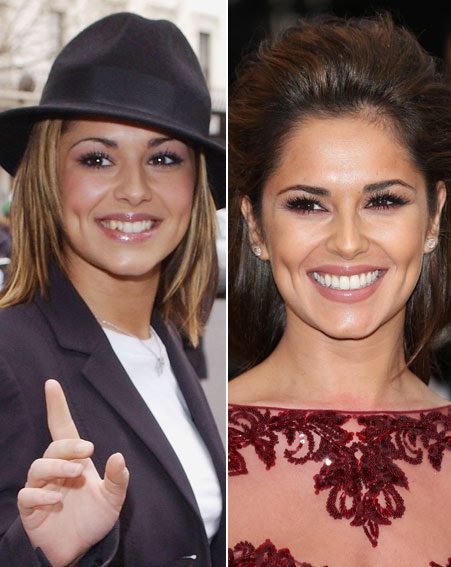 Cheryl Cole had her teeth done after shooting to fame