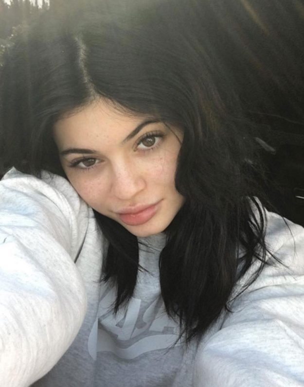 Kylie Jenner could be done with lip fillers